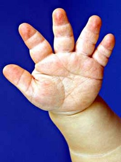 http://stagingupload.orthobullets.com/topic/4094/images/achondroplasia trident hand clinical photograph.jpg
