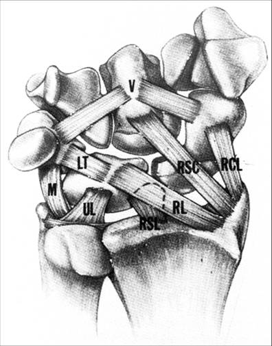 http://stagingupload.orthobullets.com/topic/6005/images/TTC Illustration - volar wrist ligaments_moved.jpg